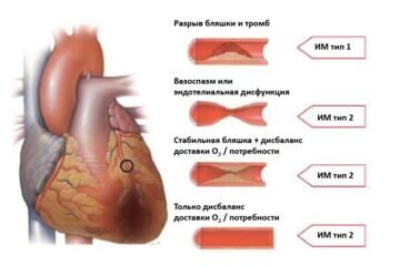 Различия между инфарктом миокарда типов 1 и 2 в зависимости от состояния коронарных артерий согласно Третьему универсальному определению инфаркта миокарда.